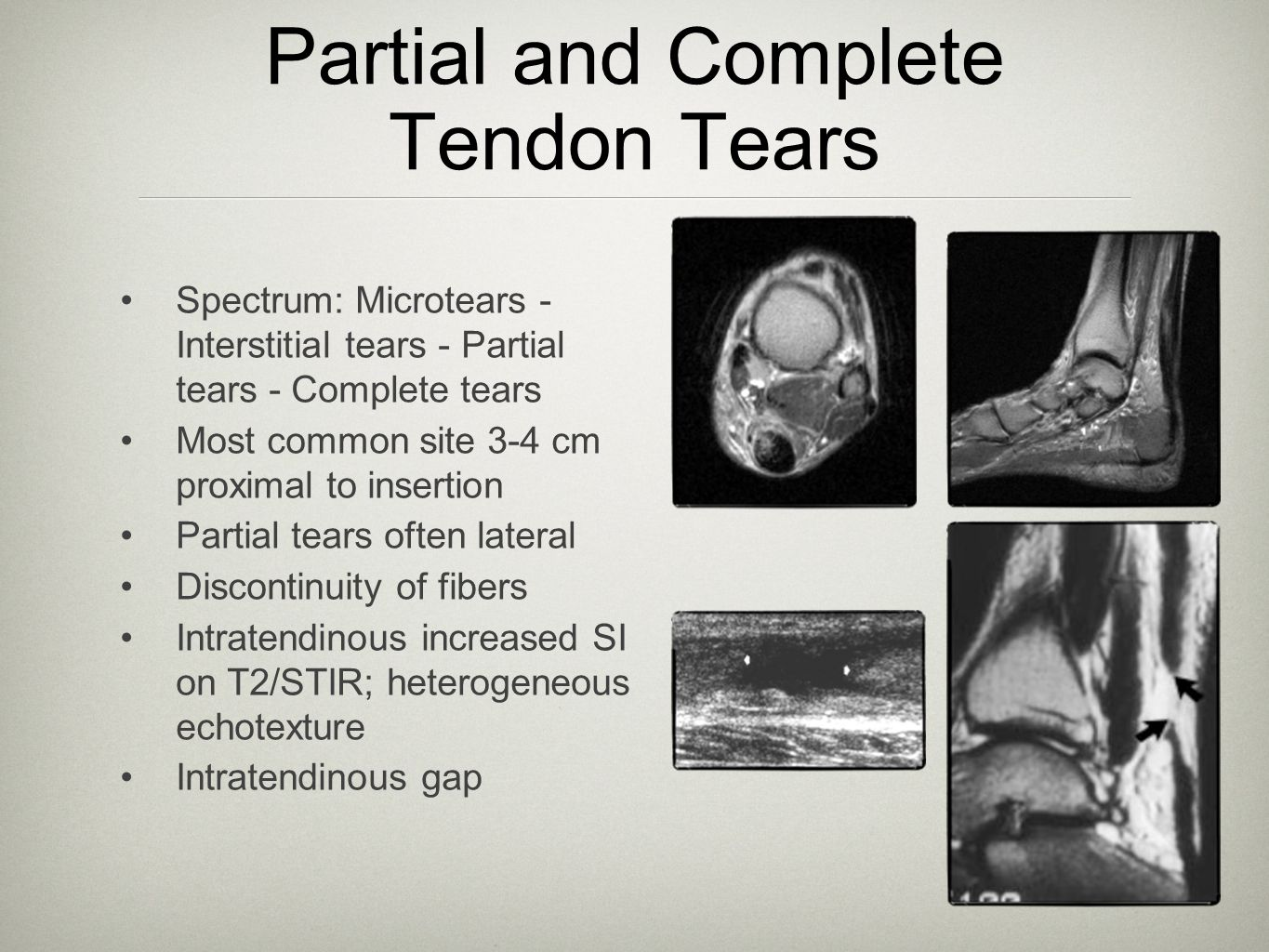 Partial and Complete Tendon Tears
