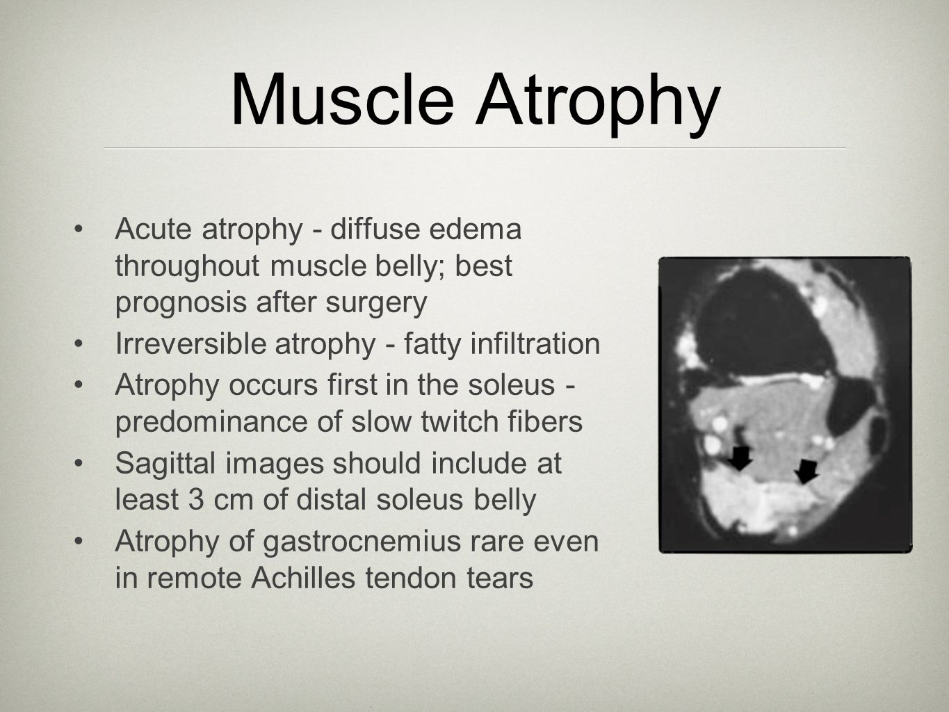 Muscle Atrophy Acute atrophy - diffuse edema throughout muscle belly; best prognosis after surgery.