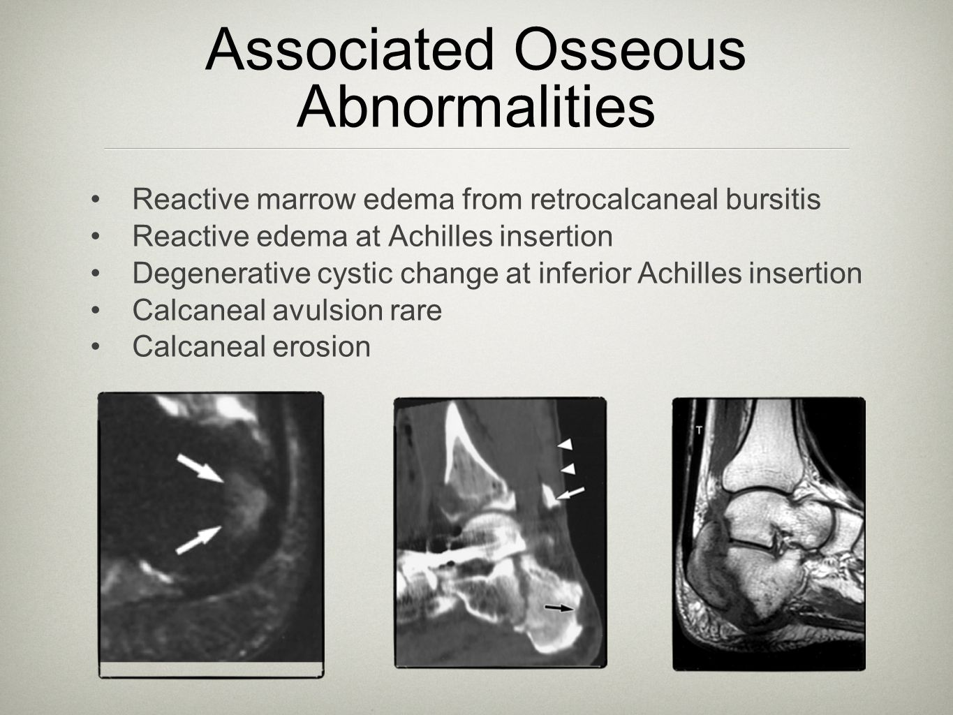 Associated Osseous Abnormalities
