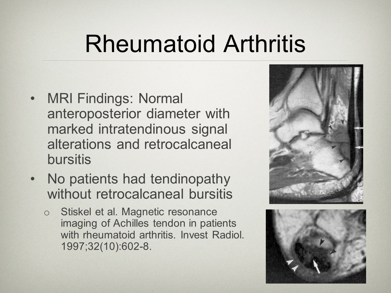 Rheumatoid Arthritis MRI Findings: Normal anteroposterior diameter with marked intratendinous signal alterations and retrocalcaneal bursitis.