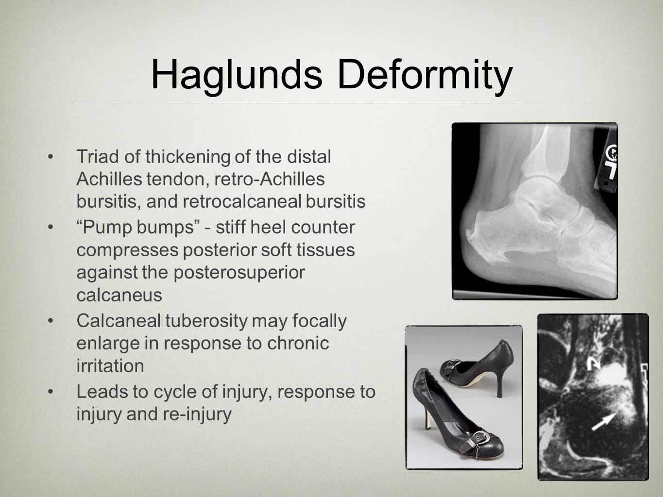 Haglunds Deformity Triad of thickening of the distal Achilles tendon, retro-Achilles bursitis, and retrocalcaneal bursitis.