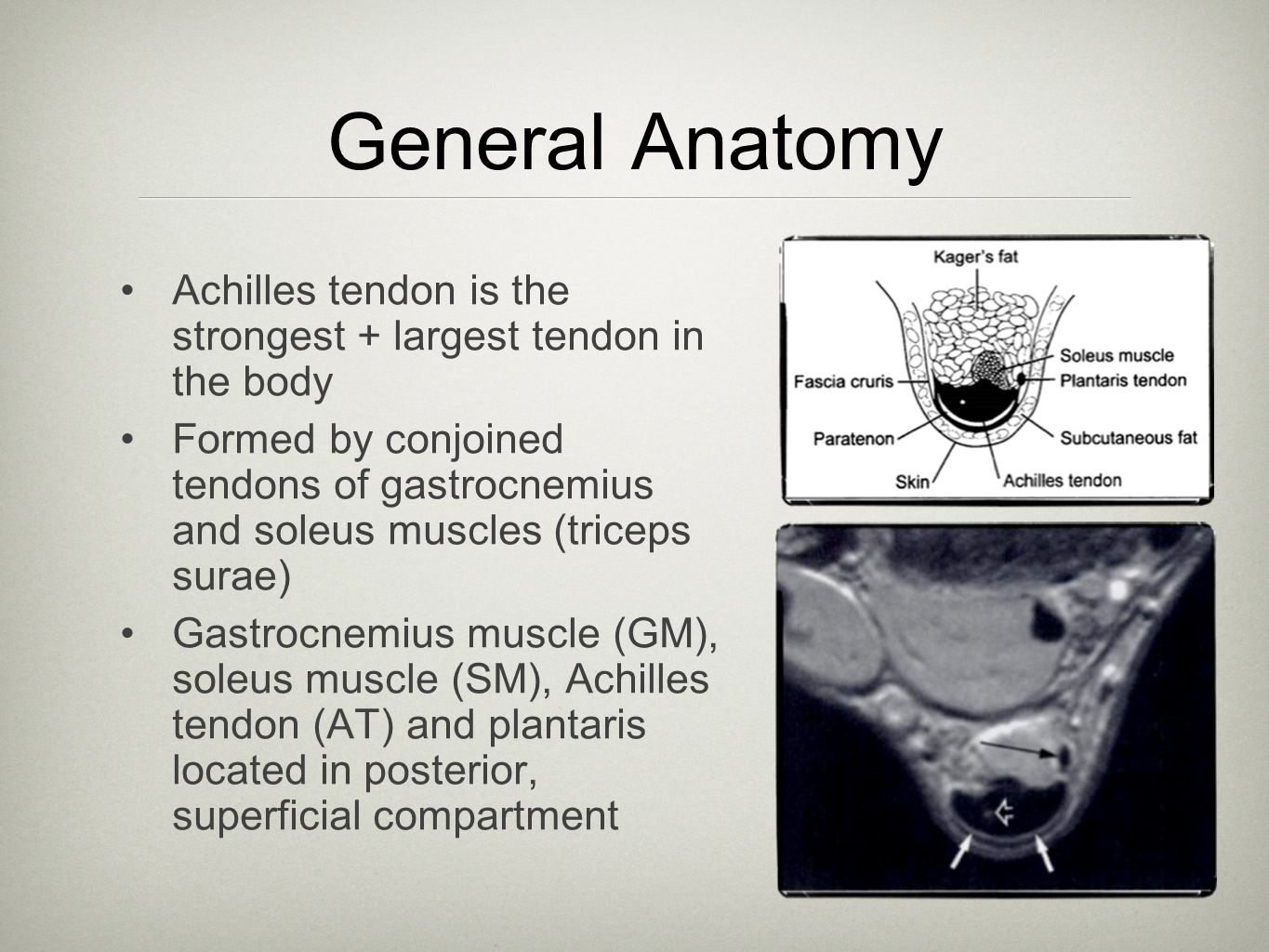 General Anatomy Achilles tendon is the strongest + largest tendon in the body.