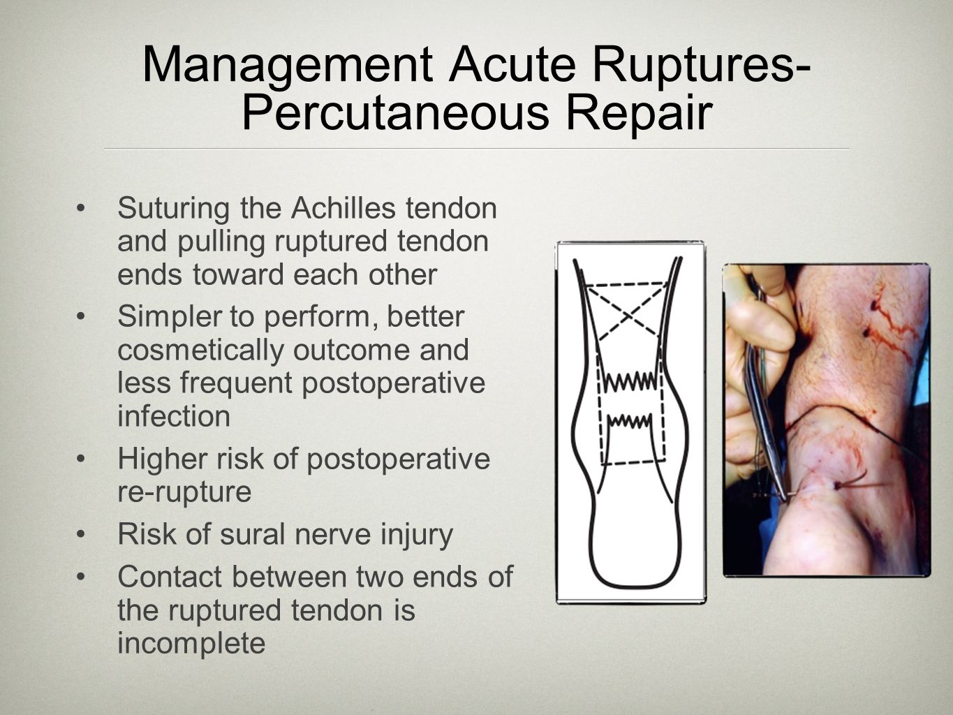 Management Acute Ruptures-Percutaneous Repair
