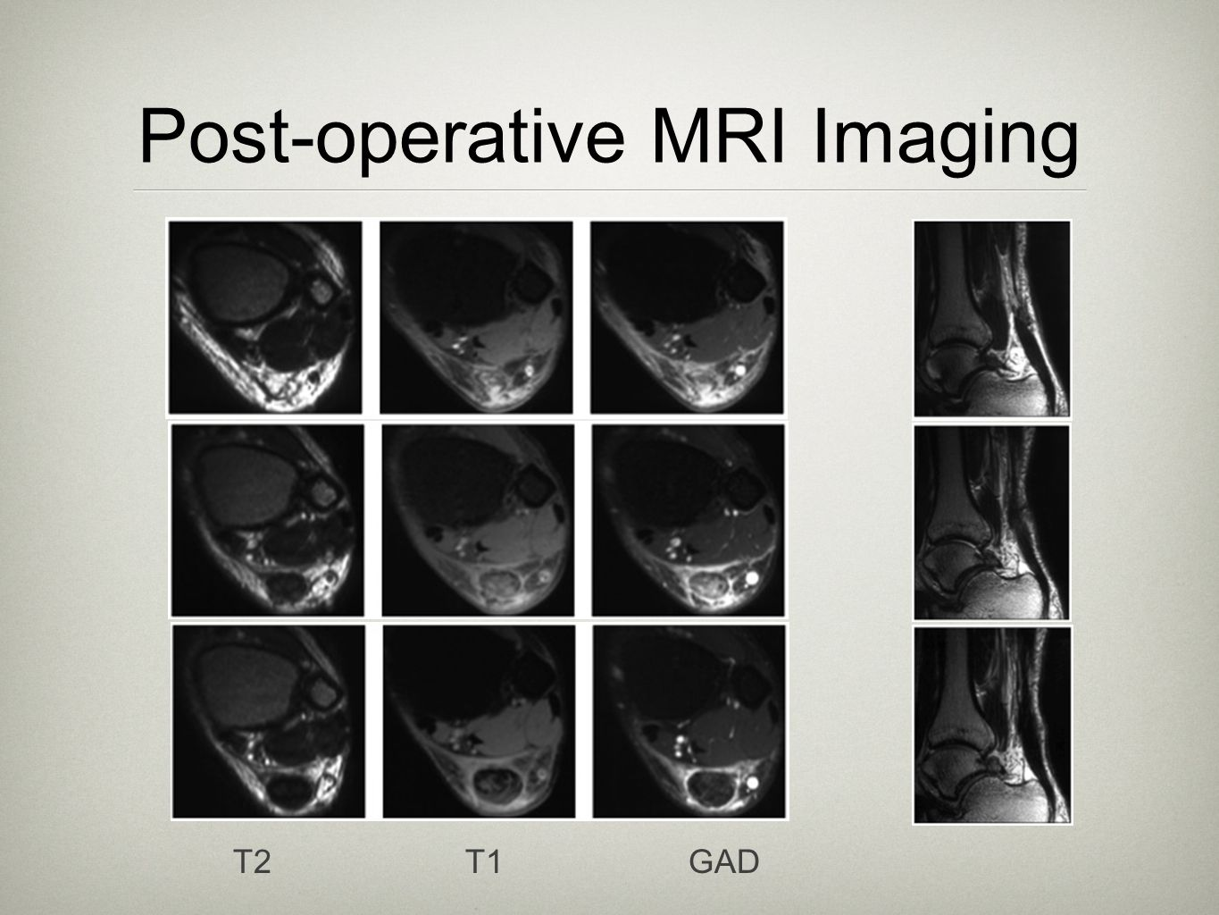 Post-operative MRI Imaging