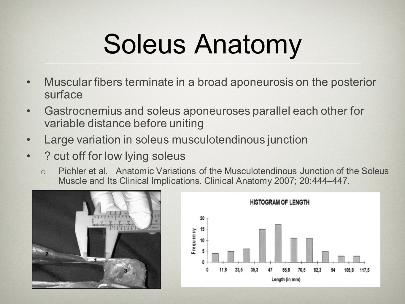 Soleus Anatomy Muscular fibers terminate in a broad aponeurosis on the posterior surface.
