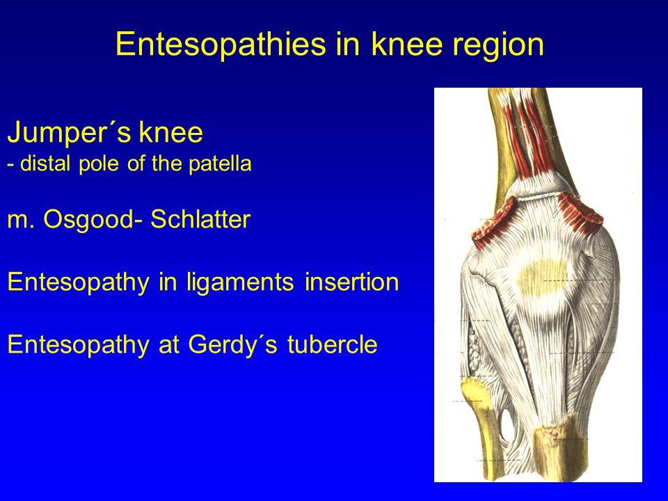 Entesopathies in knee region
