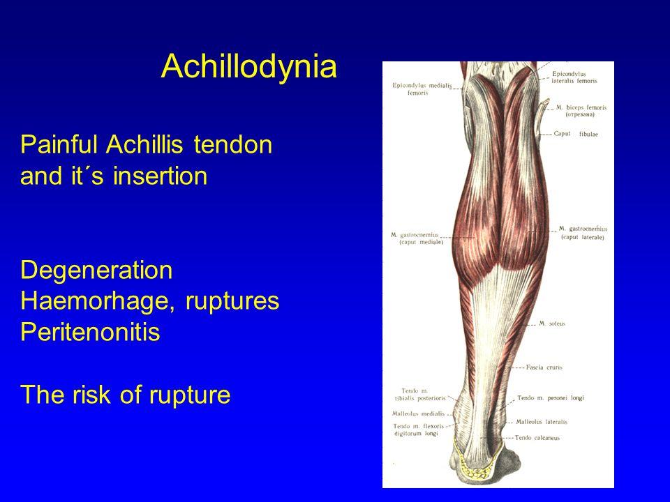 Achillodynia Painful Achillis tendon and it´s insertion Degeneration