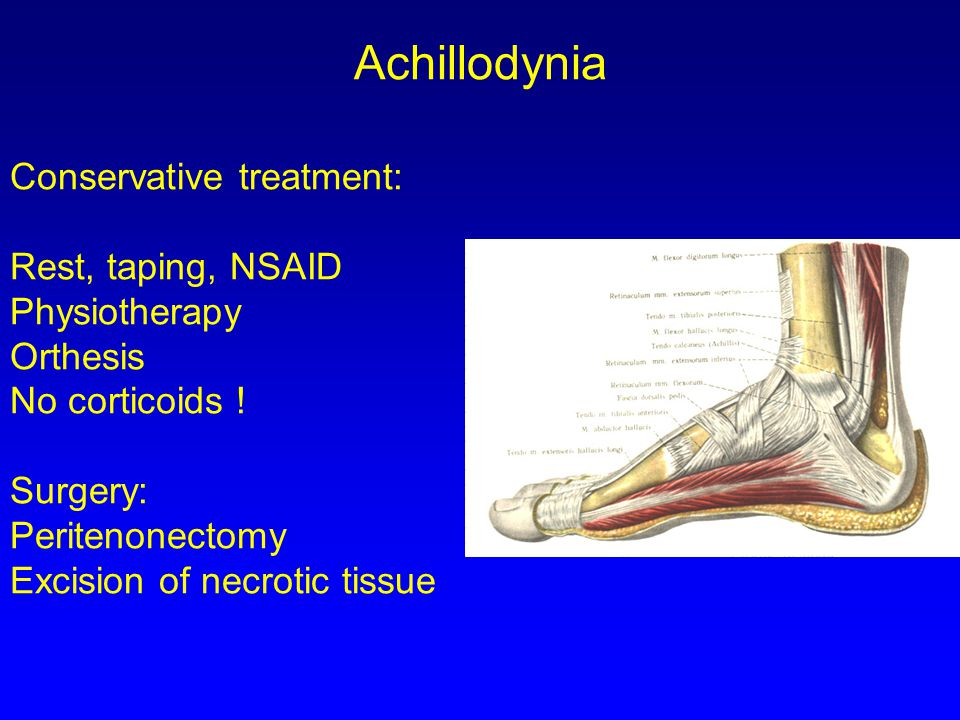 Achillodynia Conservative treatment: Rest, taping, NSAID Physiotherapy