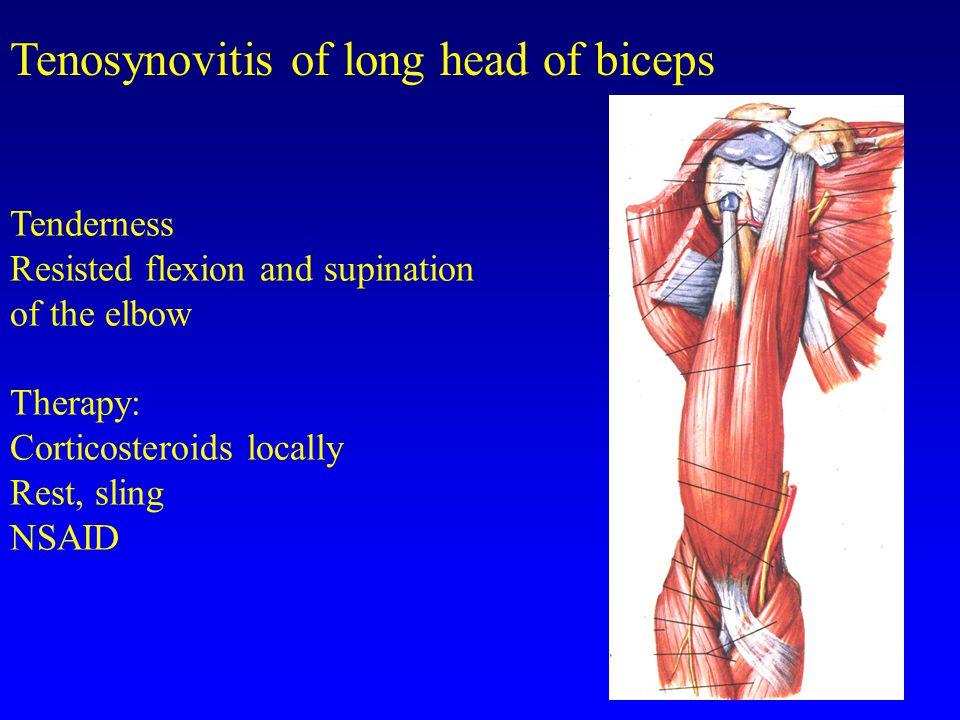 Tenosynovitis of long head of biceps