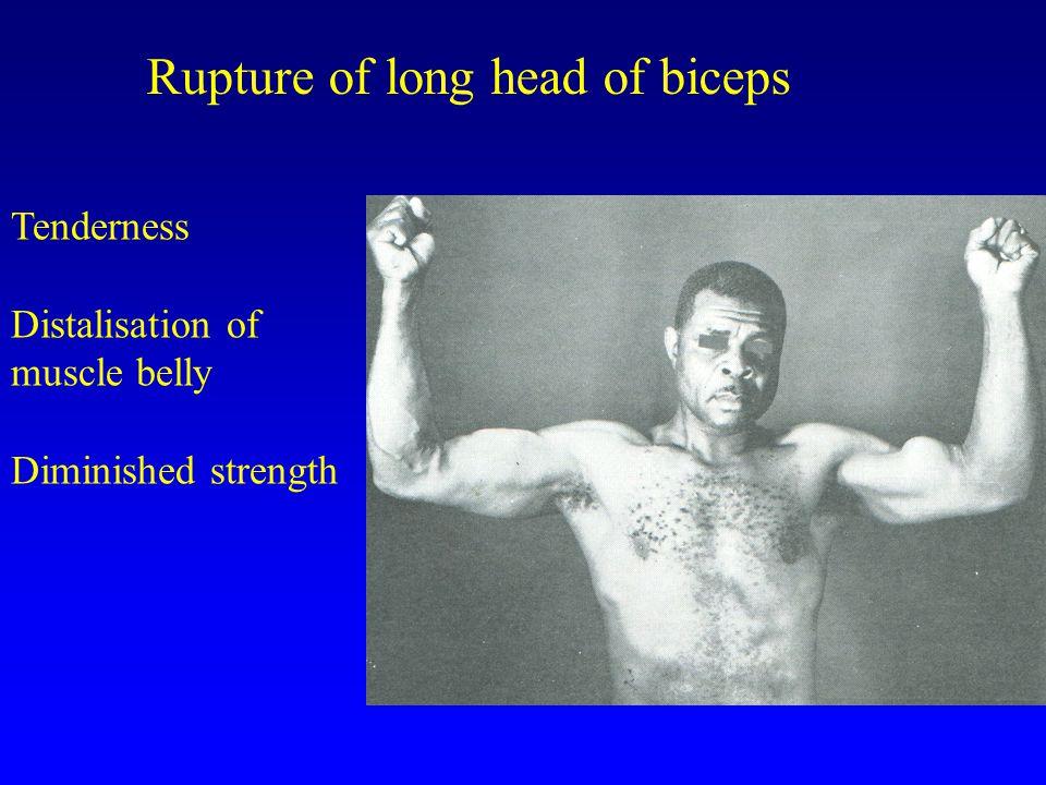 Rupture of long head of biceps