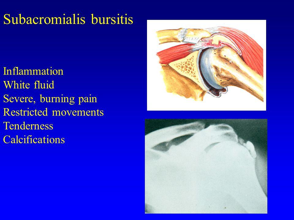 Subacromialis bursitis