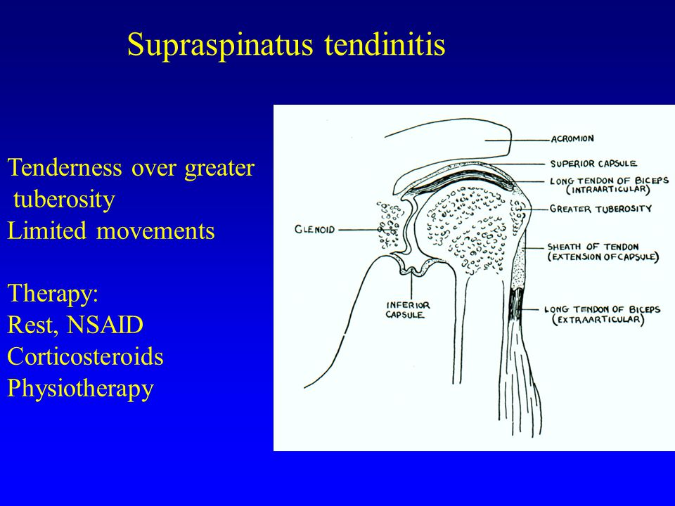 Supraspinatus tendinitis
