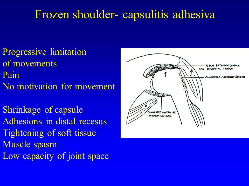 Frozen shoulder- capsulitis adhesiva