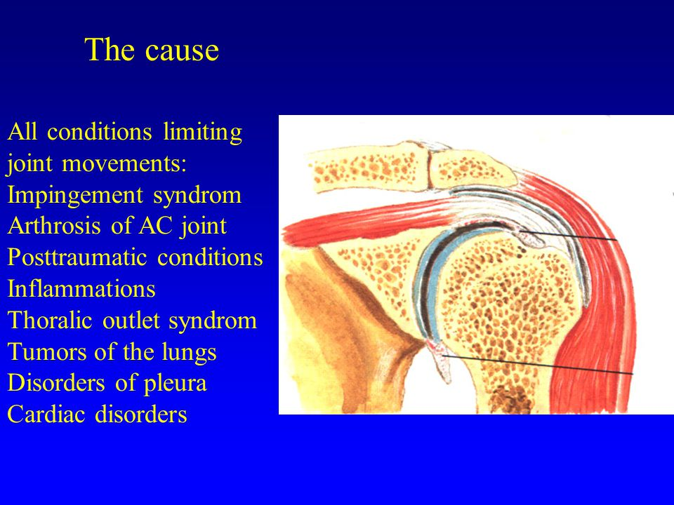 The cause All conditions limiting joint movements: Impingement syndrom