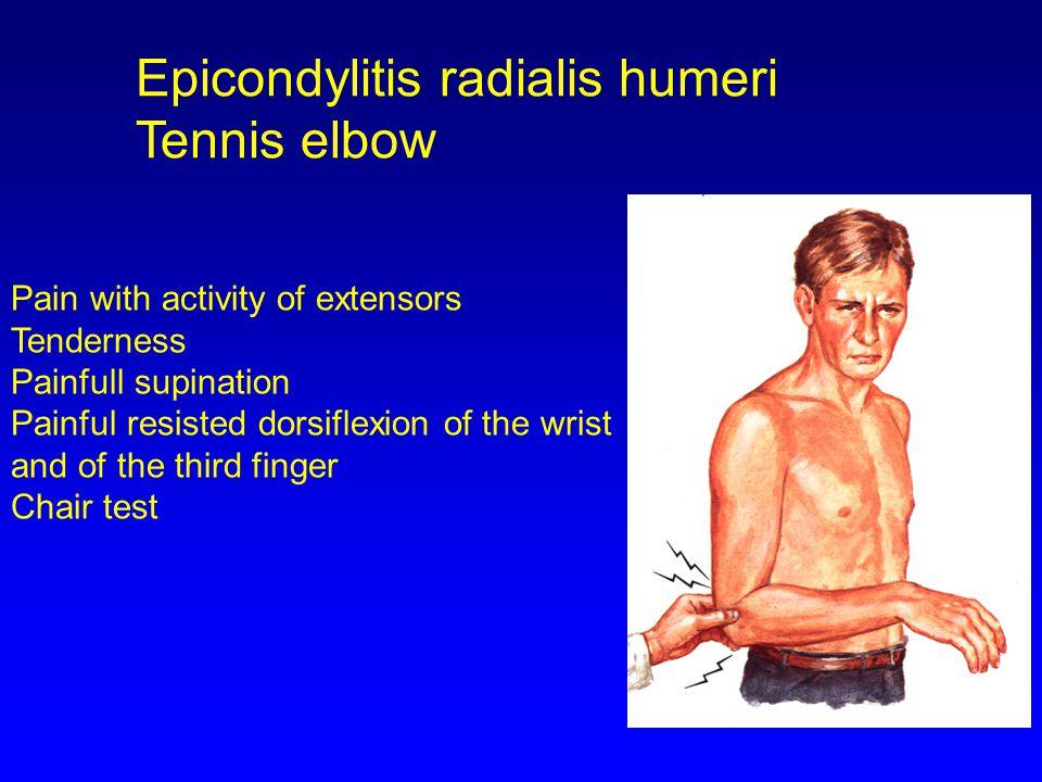 Epicondylitis radialis humeri Tennis elbow