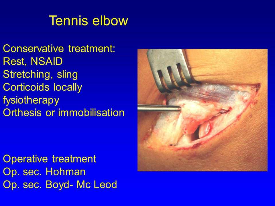 Tennis elbow Conservative treatment: Rest, NSAID Stretching, sling