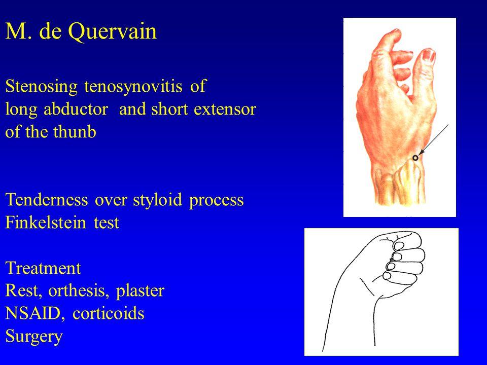 M. de Quervain Stenosing tenosynovitis of