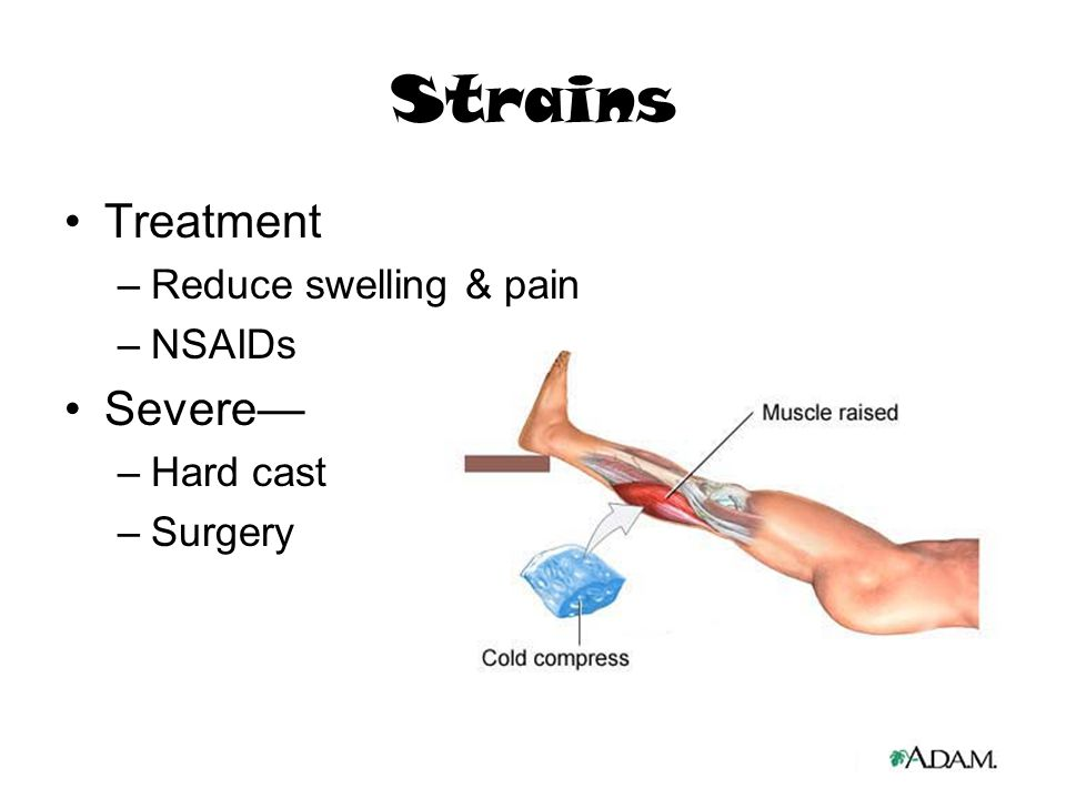 Strains Treatment Severe— Reduce swelling & pain NSAIDs Hard cast