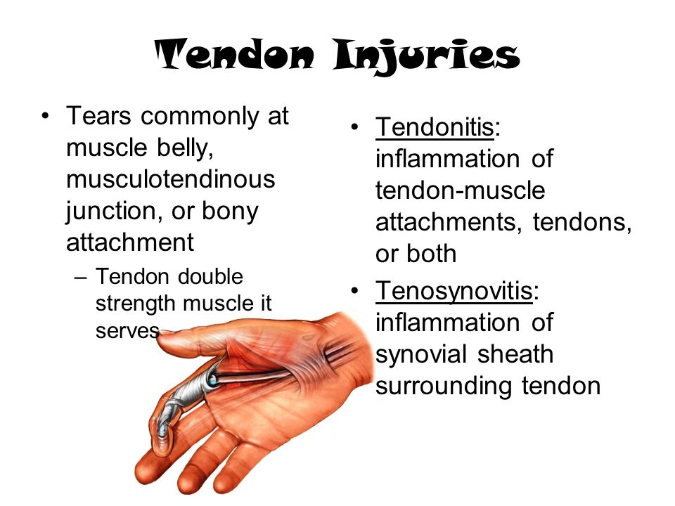 Tendon Injuries Tears commonly at muscle belly, musculotendinous junction, or bony attachment. Tendon double strength muscle it serves.