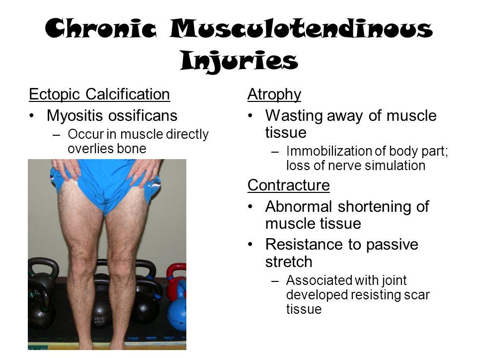 Chronic Musculotendinous Injuries