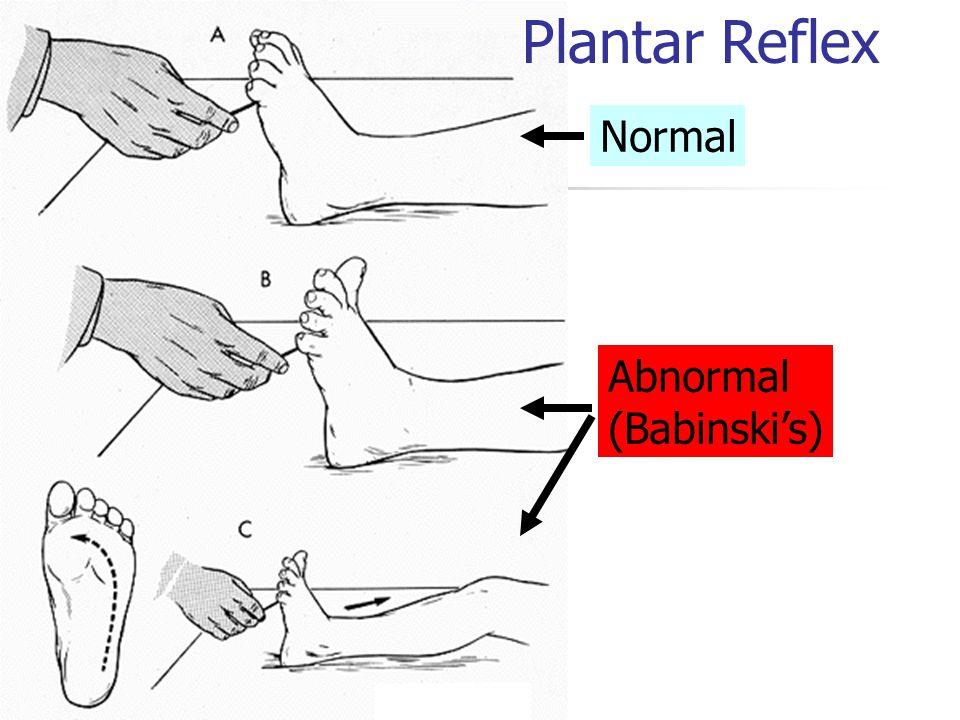 Plantar Reflex Normal Abnormal (Babinski's)