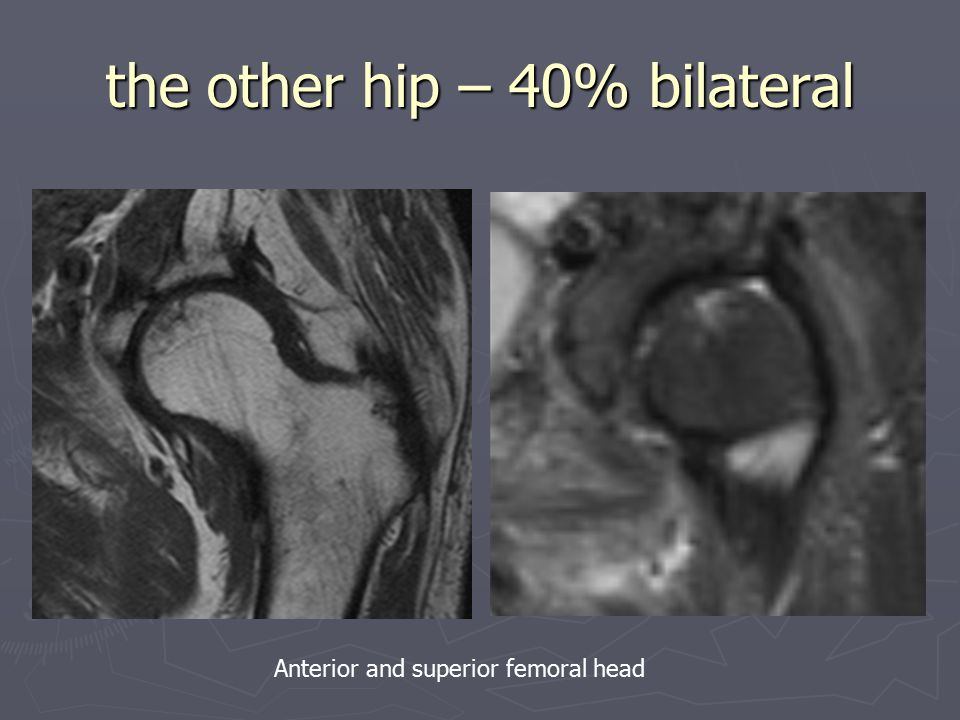 the other hip – 40% bilateral