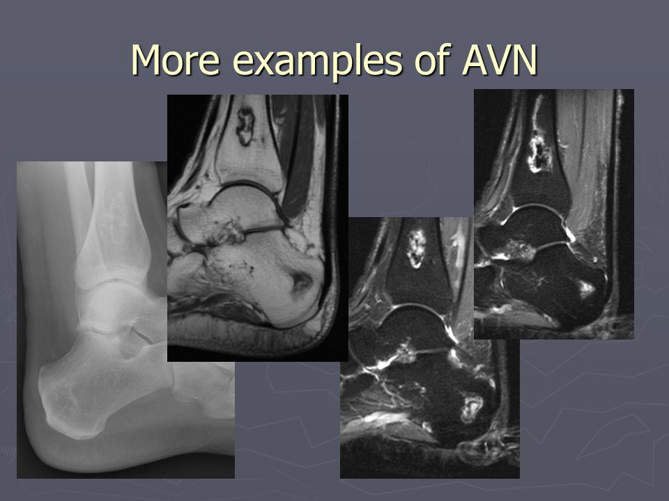 More examples of AVN