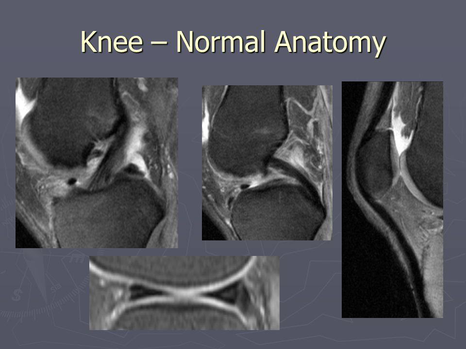 Knee – Normal Anatomy