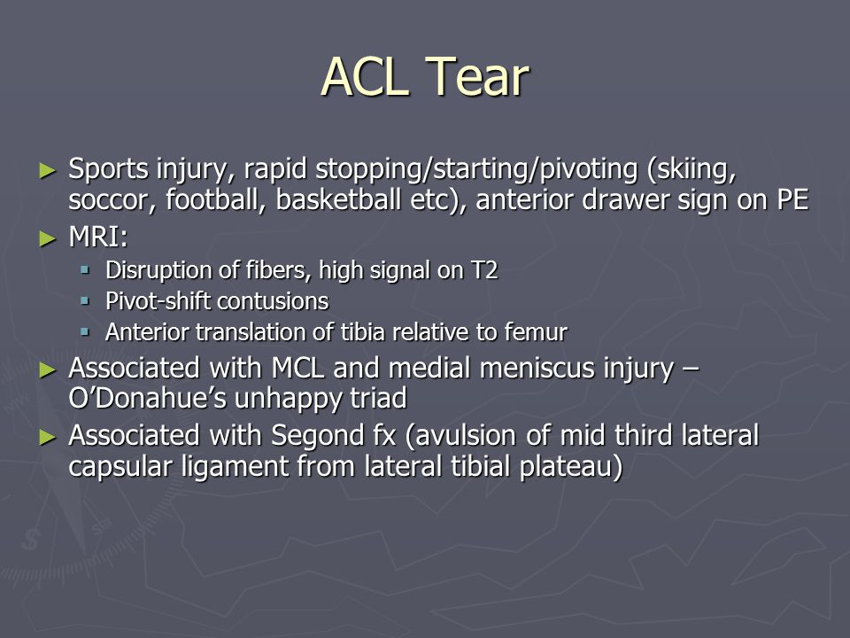 ACL Tear Sports injury, rapid stopping/starting/pivoting (skiing, soccor, football, basketball etc), anterior drawer sign on PE.