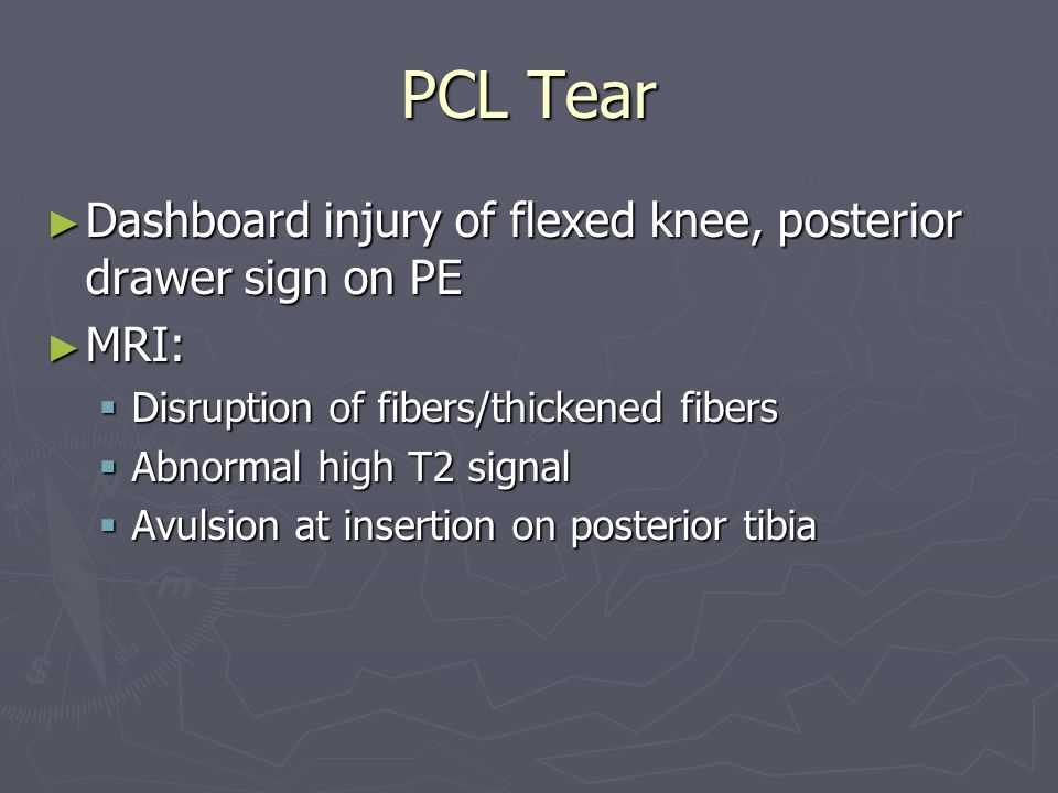 PCL Tear Dashboard injury of flexed knee, posterior drawer sign on PE