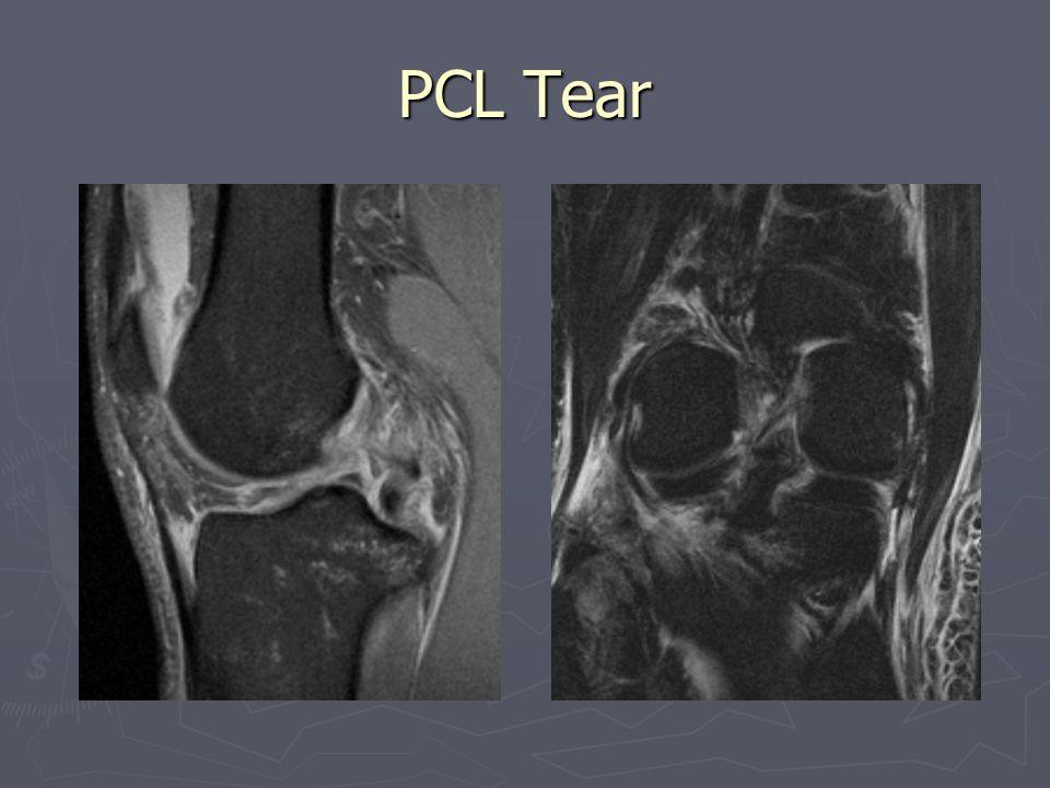 PCL Tear