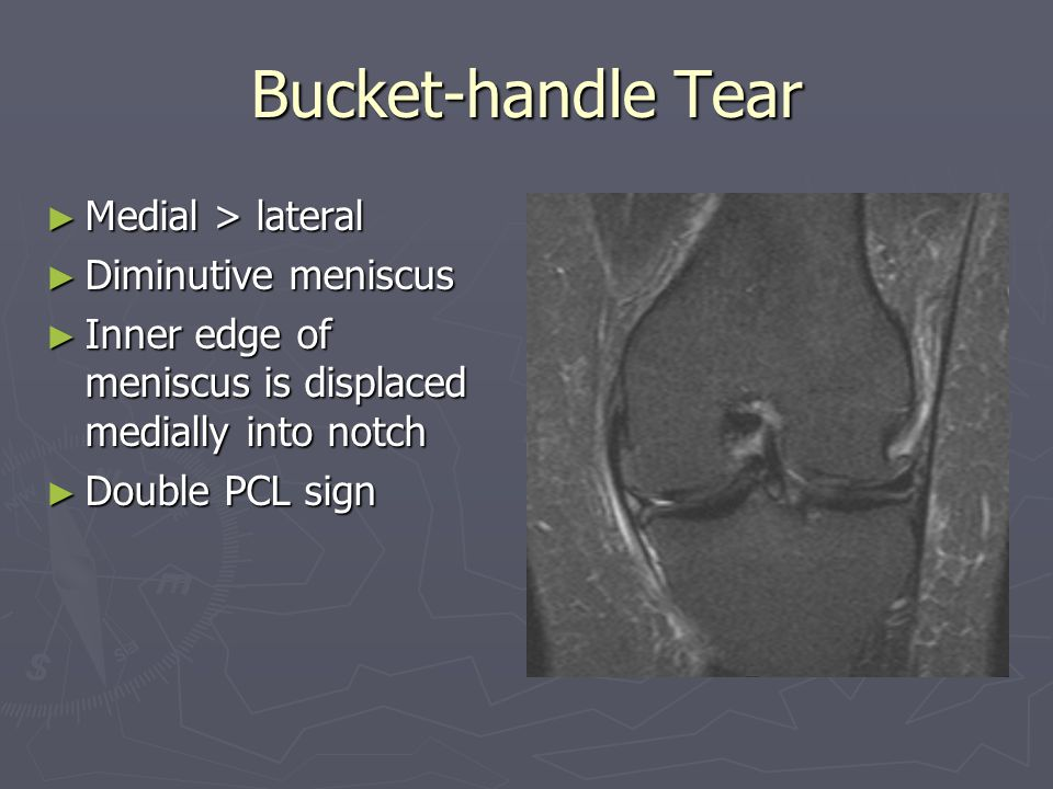Bucket-handle Tear Medial > lateral Diminutive meniscus