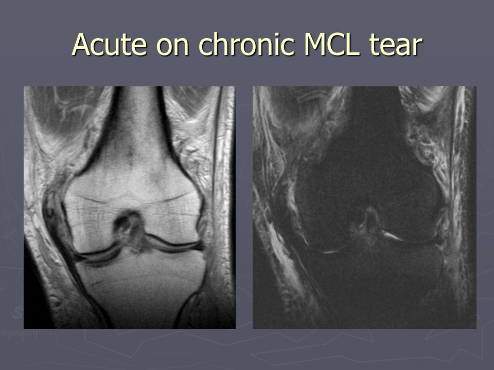 Acute on chronic MCL tear