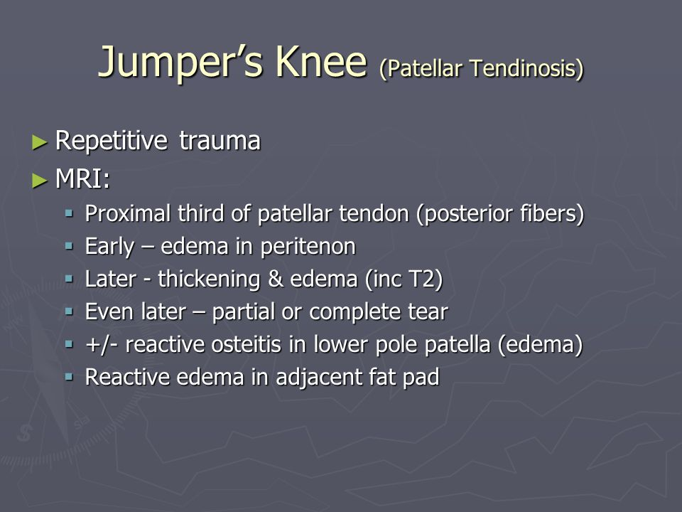 Jumper's Knee (Patellar Tendinosis)