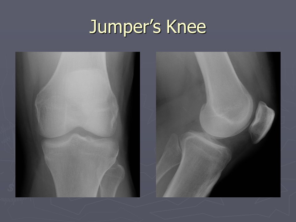 Jumper's Knee Suprapatellar effusion. Normal lucency of Hoffa's fat pad is obscured.