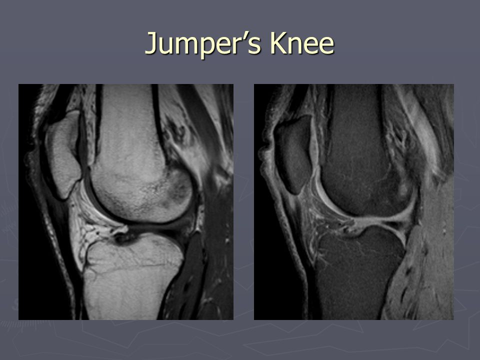 Jumper's Knee