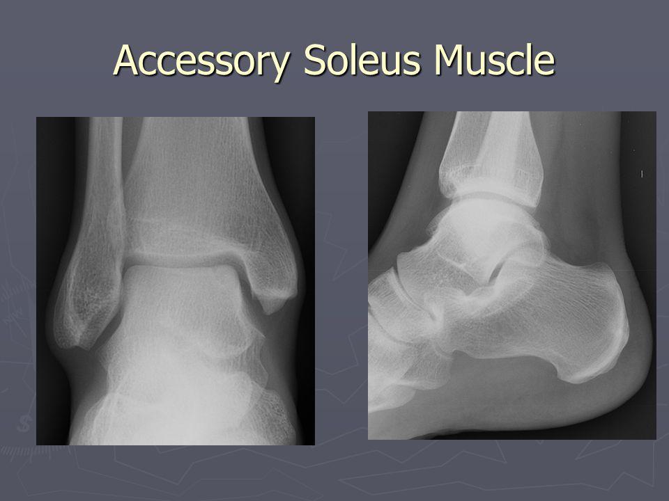 Accessory Soleus Muscle