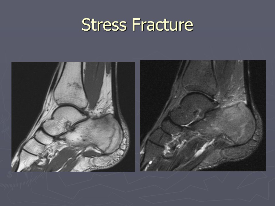 Stress Fracture Hx: 28 yo female training for marathon.