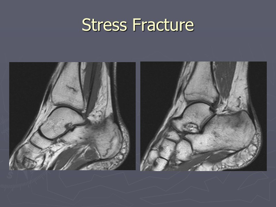 Stress Fracture Compare to normal physeal line.