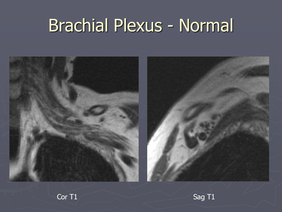 Brachial Plexus - Normal