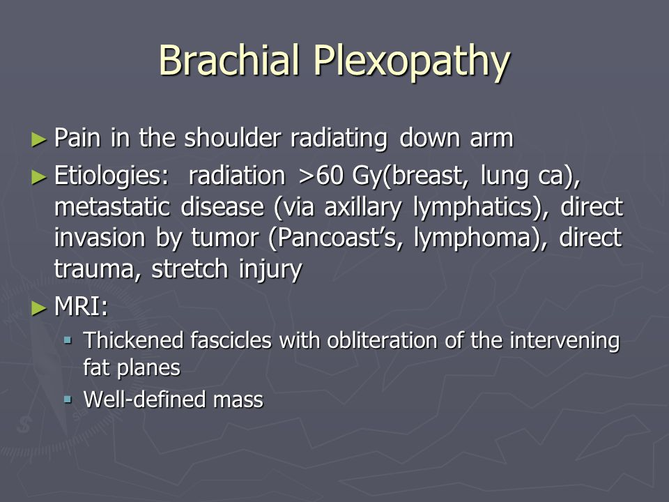Brachial Plexopathy Pain in the shoulder radiating down arm