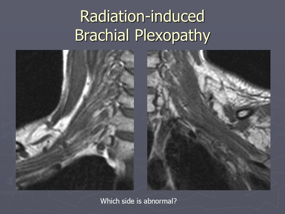 Radiation-induced Brachial Plexopathy