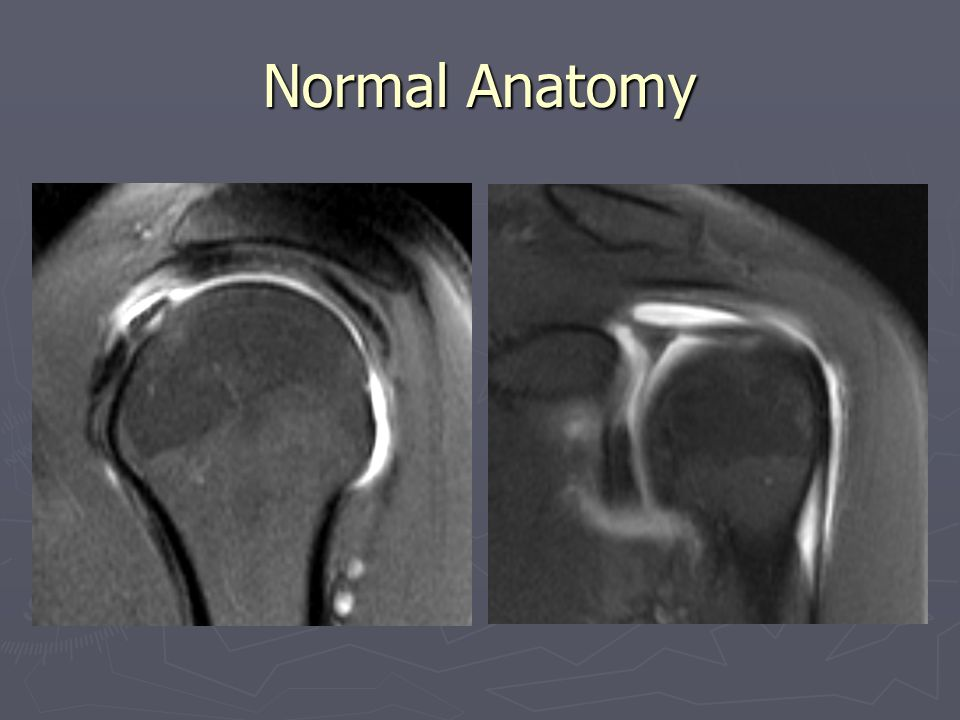 Normal Anatomy Normal rotator cuff, intra-articular and intertubercular long head of biceps, biceps anchor point.