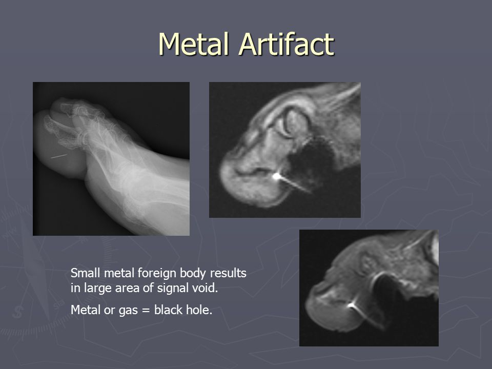 Metal Artifact Small metal foreign body results in large area of signal void.