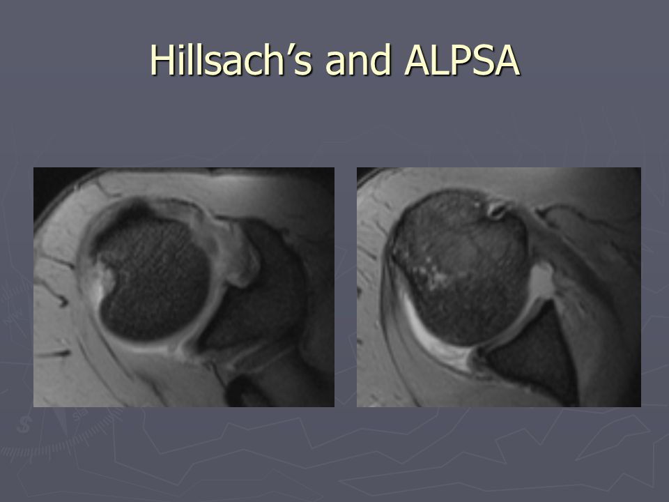 Hillsach's and ALPSA