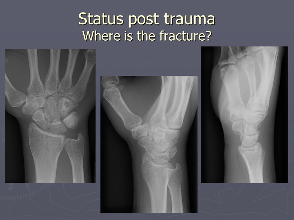 Status post trauma Where is the fracture