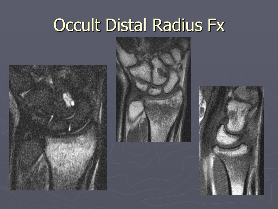 Occult Distal Radius Fx