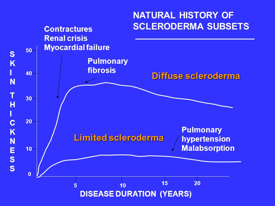 NATURAL HISTORY OF SCLERODERMA SUBSETS Diffuse scleroderma