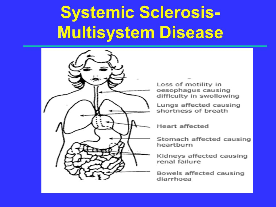 Systemic Sclerosis- Multisystem Disease
