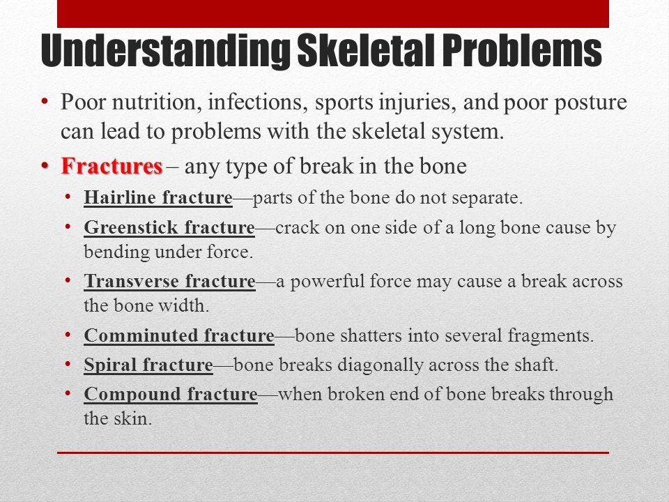 Understanding Skeletal Problems